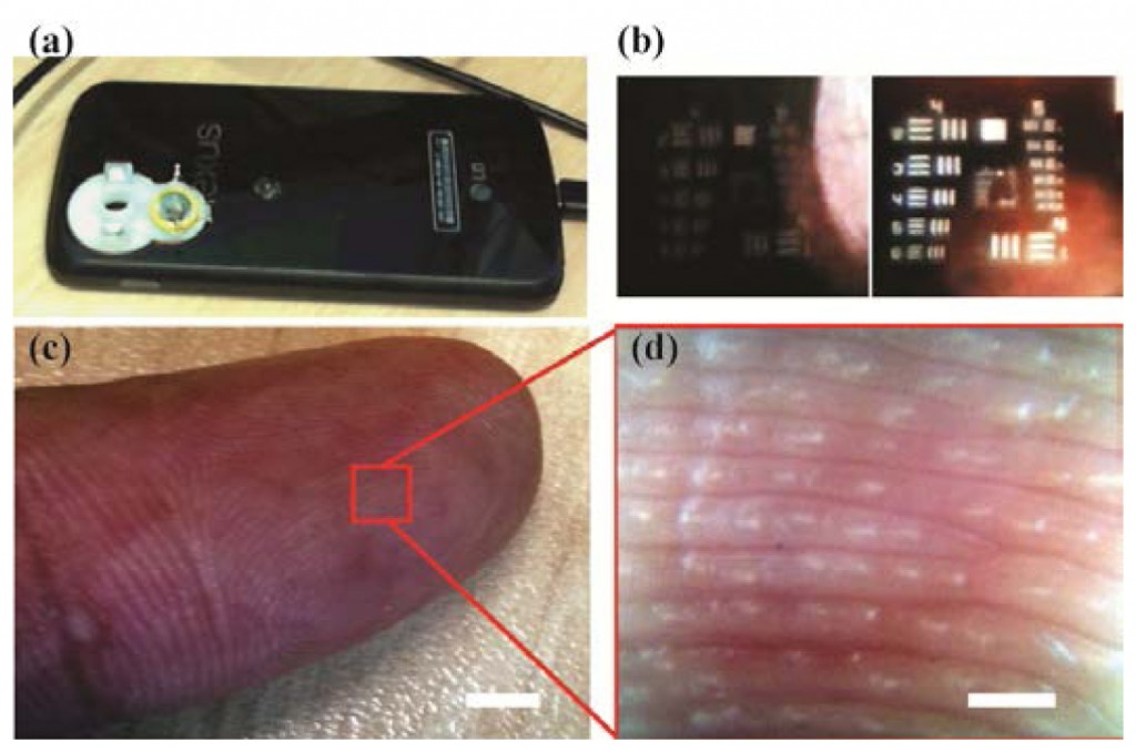 dermatoscop-iphone